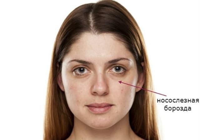Причины появления носослезной борозды